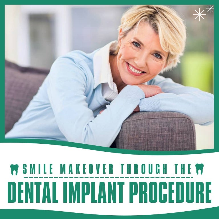 Replace your Missing Teeth with Implants
