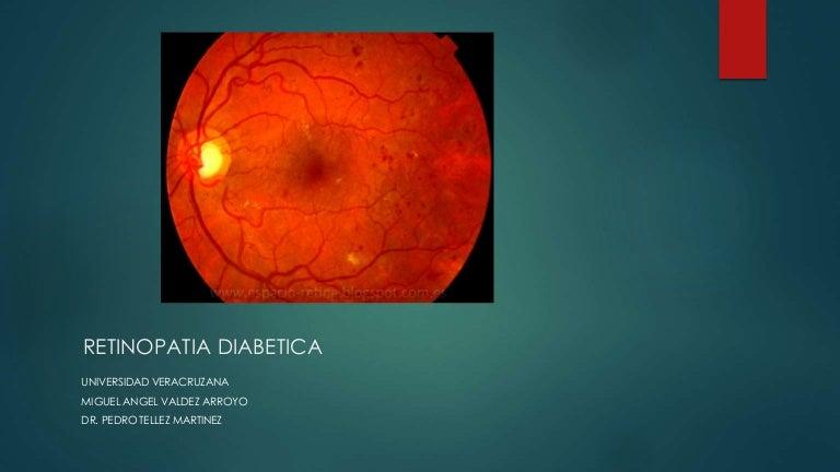 maculopatía por tracción vítrea diabetes