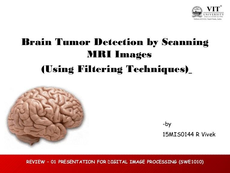 Brain tumor detection by scanning MRI images (using