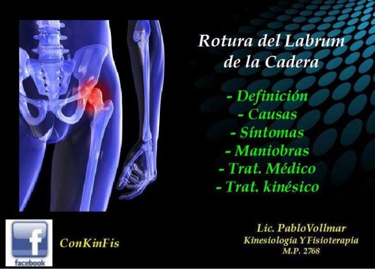 Rotura del Labrum de la Cadera