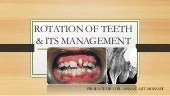 Rotation of teeth & its management