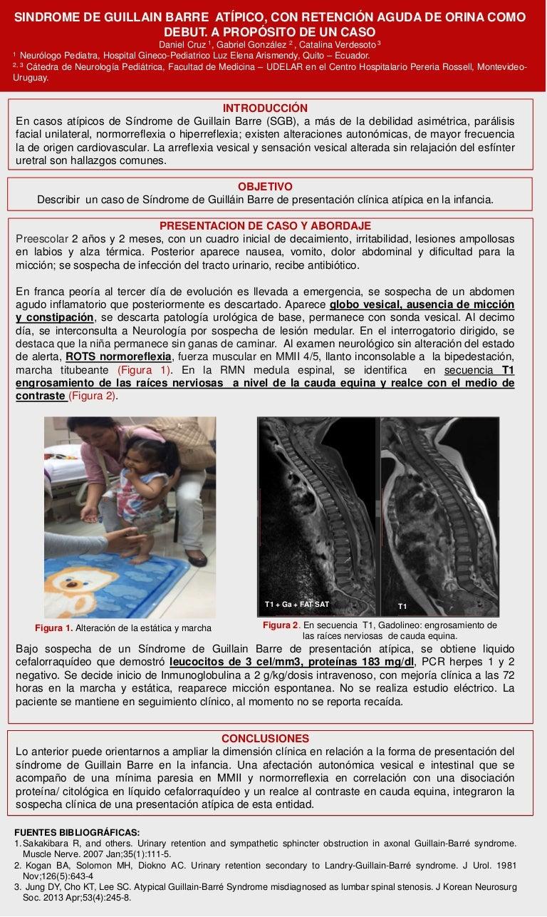 dolor de uretritis al orinar náuseas sin