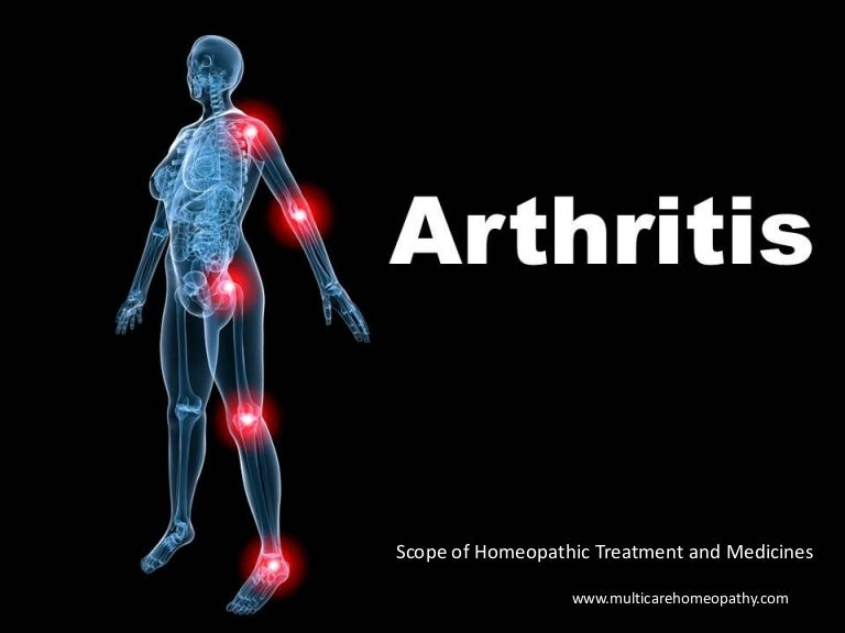 Juvenile+rheumatoid+arthritis+slides+.