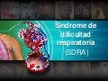 Síndrome de Distress Respiratorio del Adulto (SDRA)