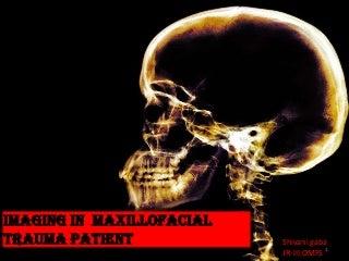 conventional radiography in maxillofacial trauma