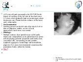 SG (acinic cell adenocarcinoma)