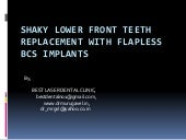 Shaky lower front teeth replacement with flapless bcs implants