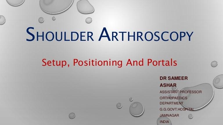 shoulder-170107170551-thumbnail-4.jpg?cb=1483808901