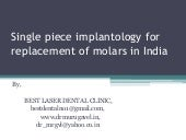 Single piece implantology for replacement of molars