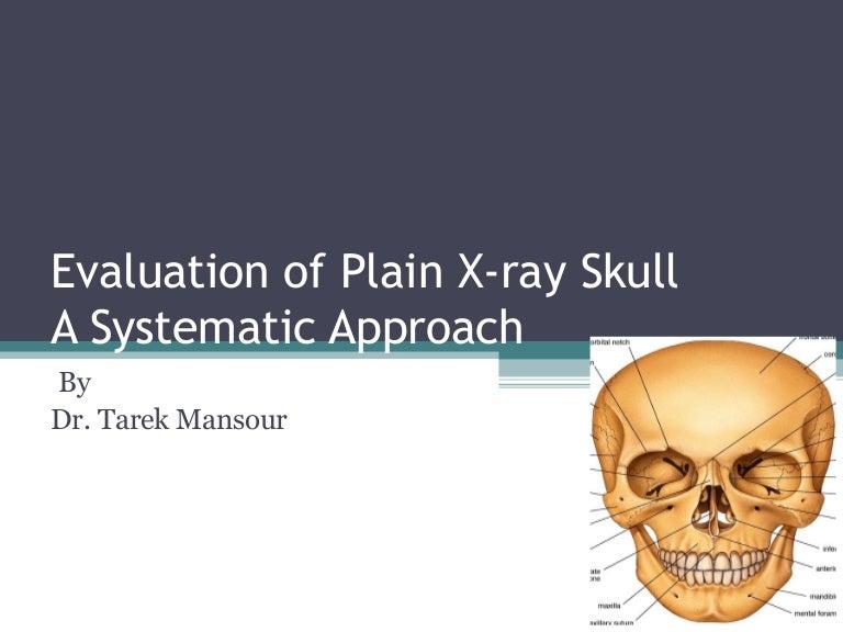 Skull X Ray Plain Evaluations