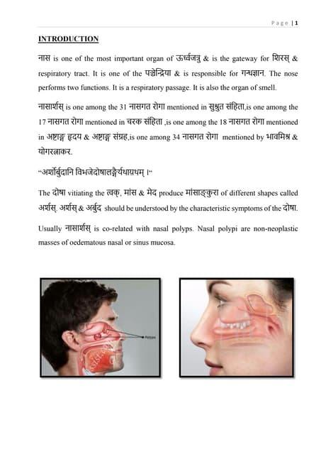 nasal polyp ,ayurvedic view