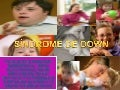 Síndrome de down power point