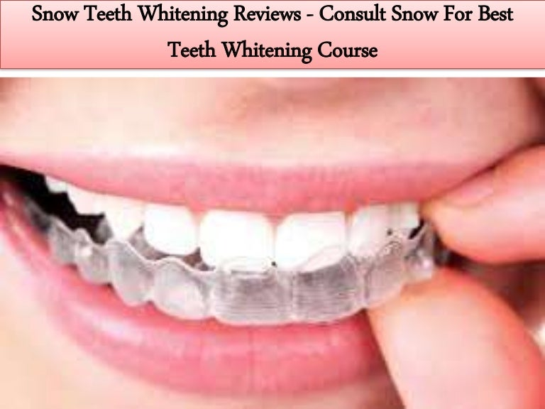 Snow Teeth Whitening Reviews Consult Snow For Best Teeth Whitening