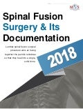 Spinal Fusion Surgery & Its Documentation