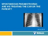 Spontaneous pneumothorax: Are we treating the patient or the xray?