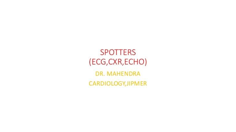 interesting ECG,CXR,ECHO