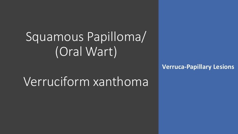 Squamous papilloma ppt, Squamous cell papilloma cancerul fatalitate sau vina personala