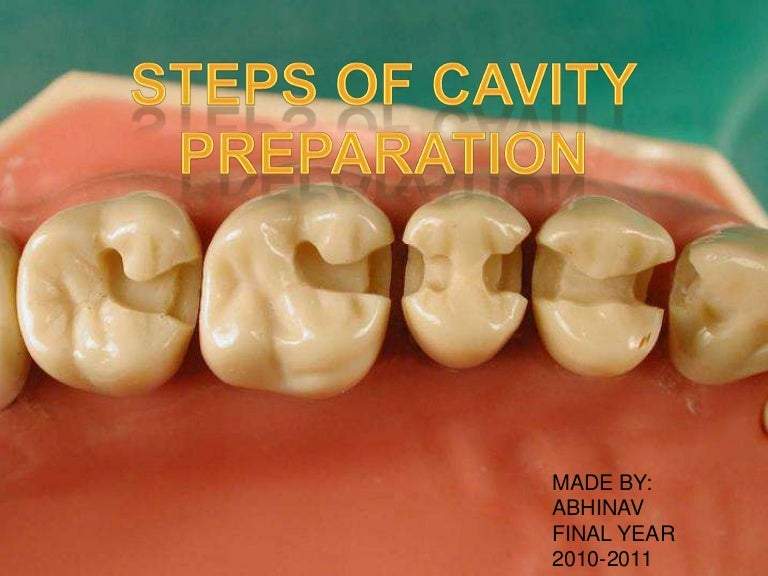 Steps Of Cavity Preparation