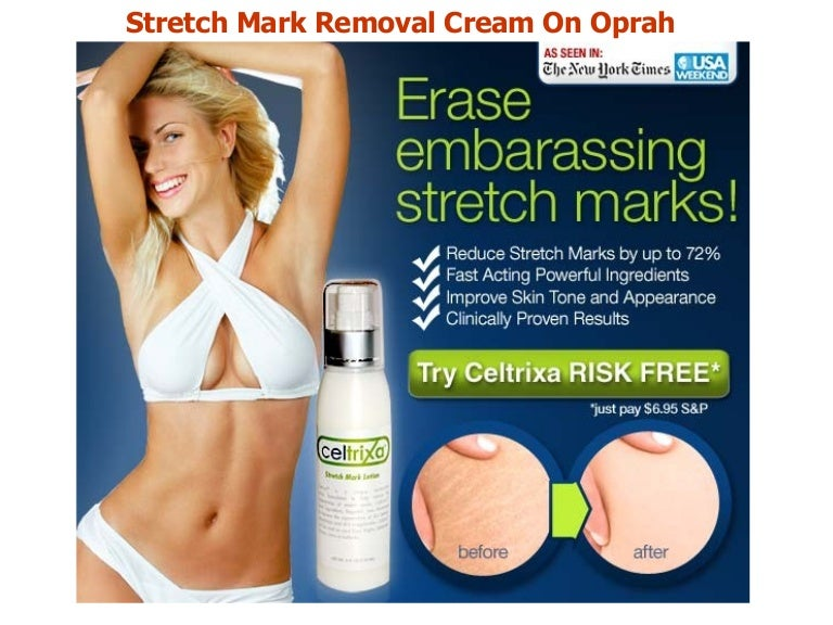 Stretch Mark Removal Cream On Oprah It Works