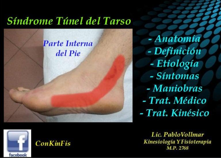 Sindrome Tunel Tarsiano