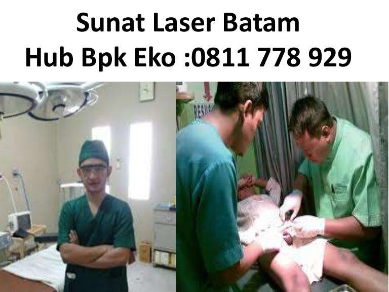 sunatlaserbatam 160204021102 thumbnail 4