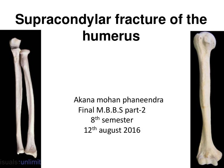 Supracondylar Fracture Of The Humerus By Phaneendra Akana