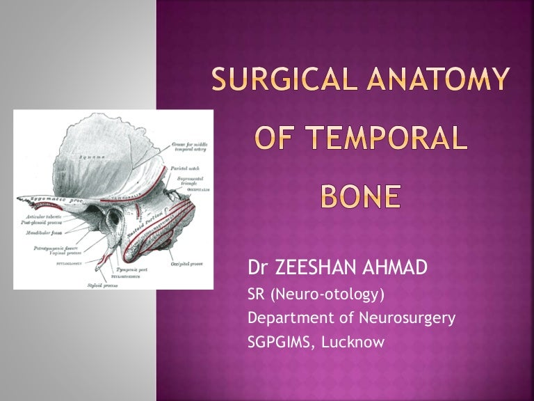 Surgical Anatomy Of Temporal Bone Dr Zeeshan Ent Lucknow
