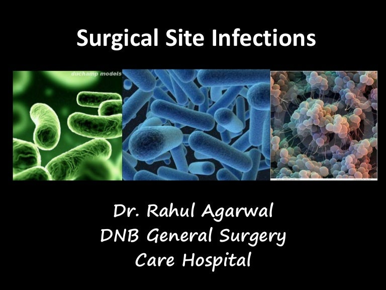 surgical site infections According to research, surgical site infection is the most common healthcare-associated infection among surgical patients, with 77% of patient deaths reported to be related to infection it is obviously important to improve patient safety by reducing the occurrence of surgical site infections.