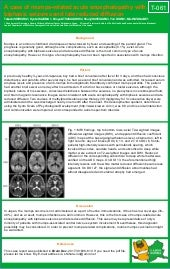 A case of mumps-related acute encephalopathy with biphasic seizures and late reduced diffusion