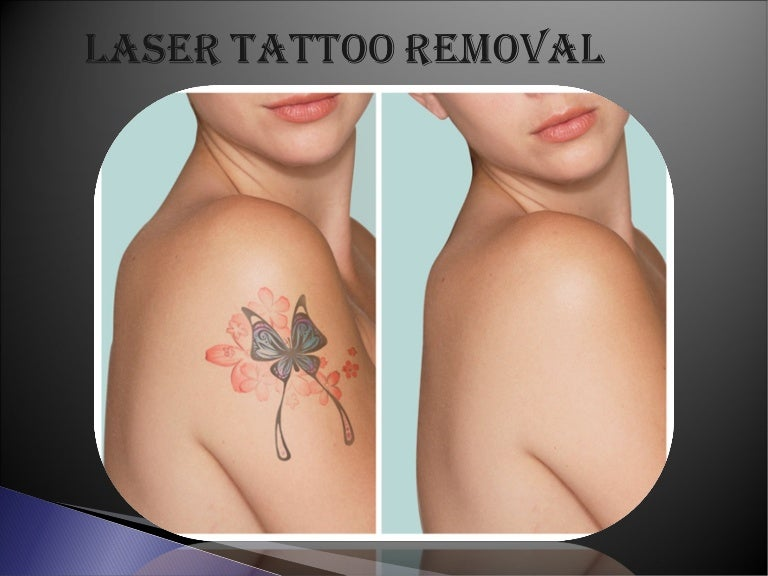 Laser Tattoo Removal Los Angeles | Tattoo Removal Los Angeles