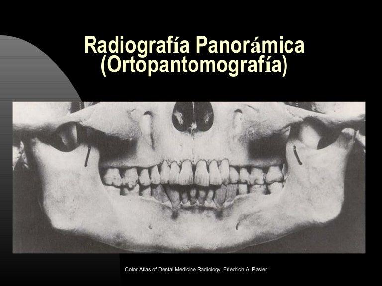 Técnicas radiográficas oclusales y ortopantomografía