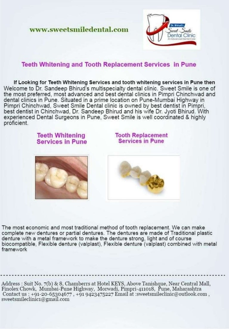 Find Best Dentist For Teeth Whitening In Pune Teeth Whitening Cost I