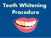 Teeth Whitening - Easy Techniques