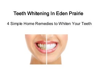 Teeth Whitening In Eden Prairie