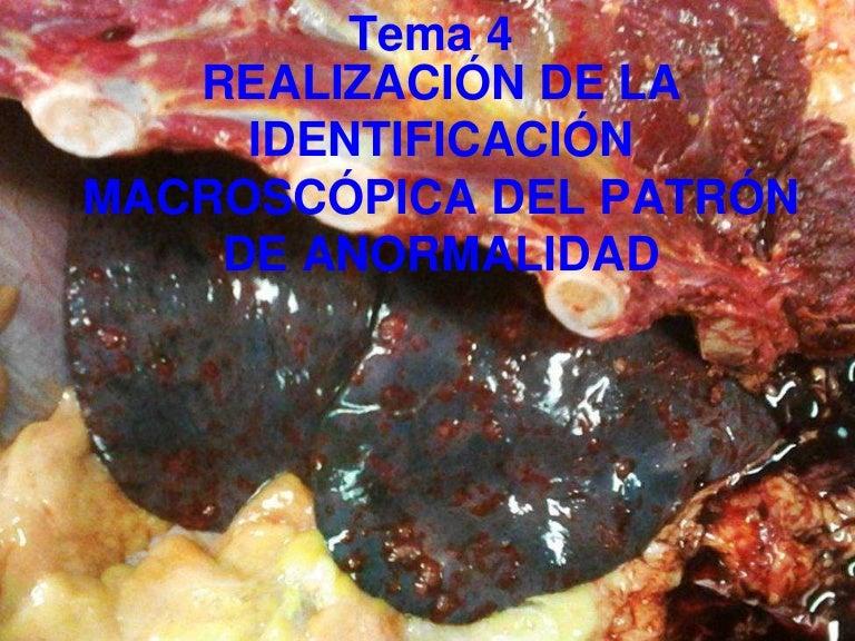 Tema 4. Necropsias. Realización de la identificación macroscópica del…