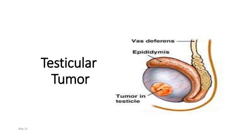 Testicular Tumor