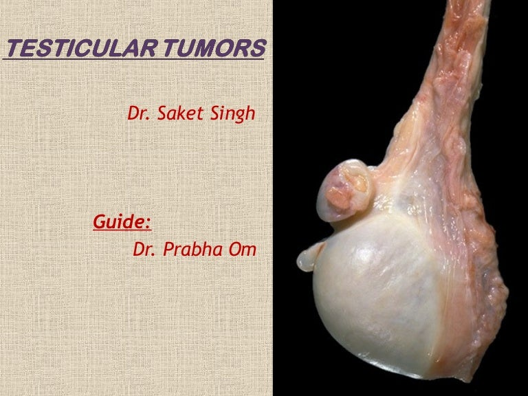 Radiation testicular seminoma cancer powerpoint