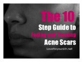 The 10 step guide to fading and treating acne scars