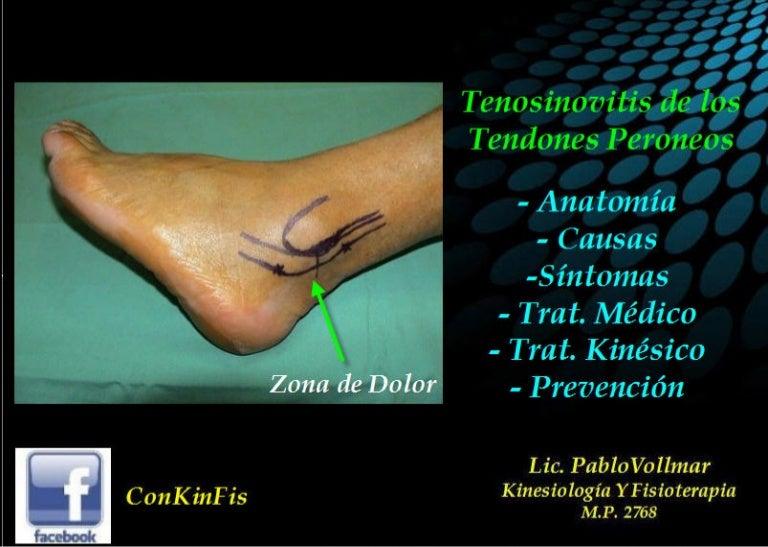 Tenosinovitis Músculos Peroneos