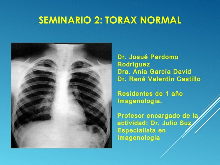 rx torax normal mujer