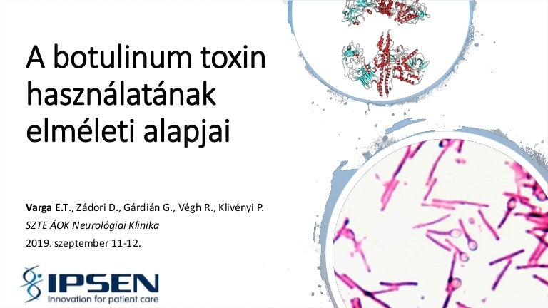 vizelet toxin