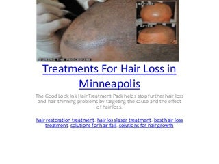 Treatments For Hair Loss in Minneapolis