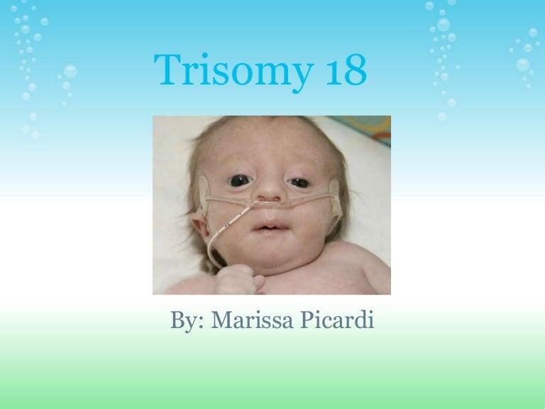 18 Trisomia