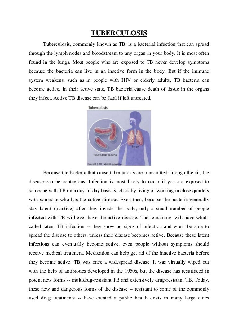 How tuberculosis is transmitted 36