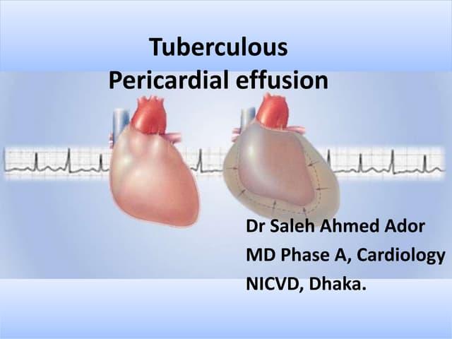 Tuberculous pericardial effusion