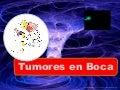 Tumores Orales