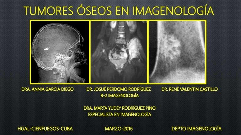 metástasis ósea de cáncer de próstata cura 2