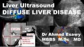 Ultrasound diffuse liver disease all things fibrosis,cirrhosis,us scoring,ce lrad,fibroscan,hepatitis,psc,aih,pbc