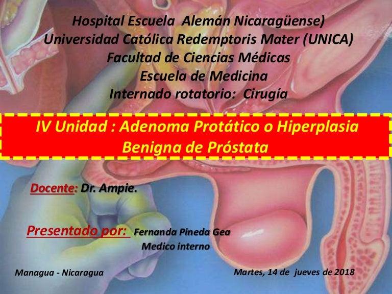 terapia de adenoma de próstata d