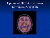 Update of hie treatment
